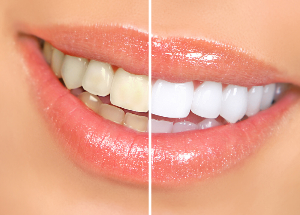 Teeth Whitening in Denver
